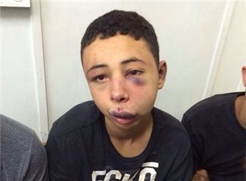 Tariq Abu Khdeir qualche ora dopo l'arresto