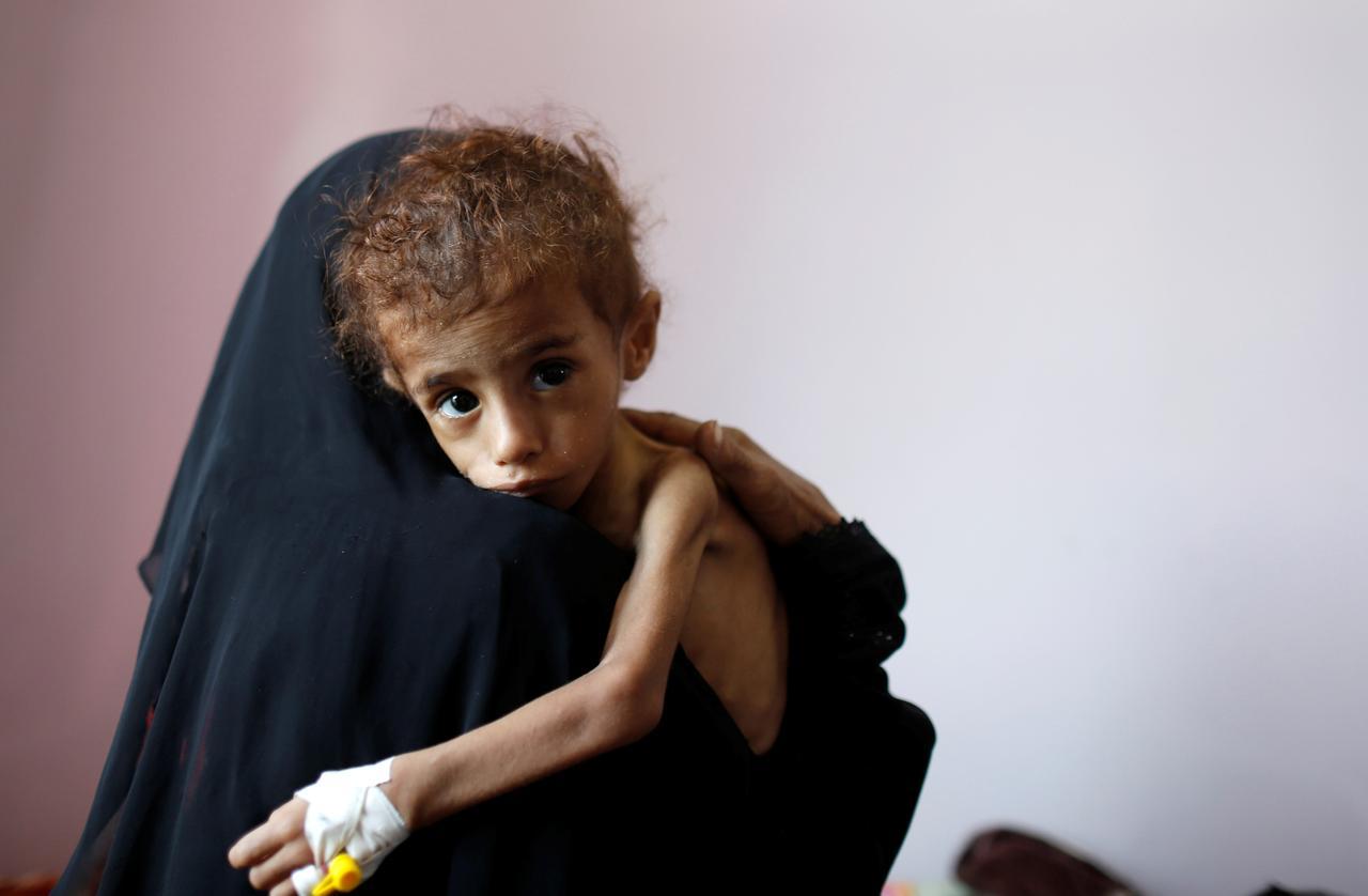 Donna yemenita con il suo bambini malnutrito (Foto: REUTERS/Khaled Abdullah)
