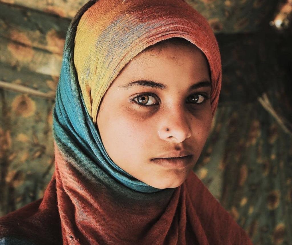 Donne in Yemen (Foto: Ocha/Un)